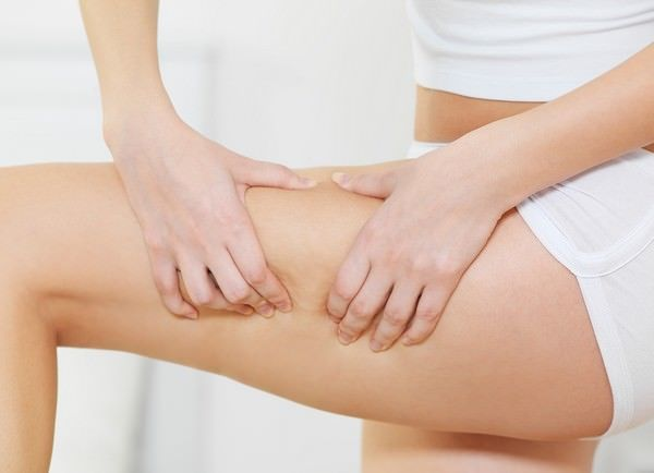 Home Remedies for Cellulites Reduction
