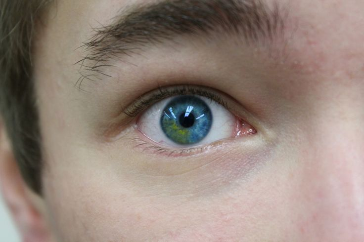 sectoral heterochromia blue green eyes pinterest eye. Black Bedroom Furniture Sets. Home Design Ideas