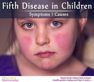 Medline Pubmed: Fifth disease - Erythema Infectiosum