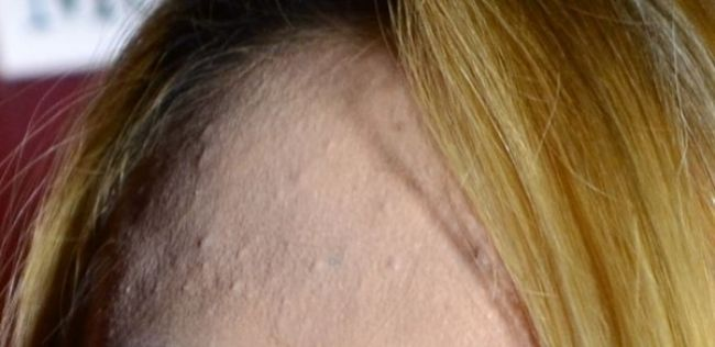 Learn how to remove under the skin pimples without damaging your skin.