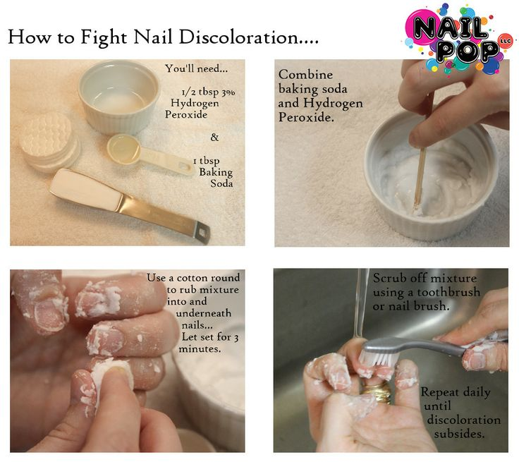 How to fix nail discoloration