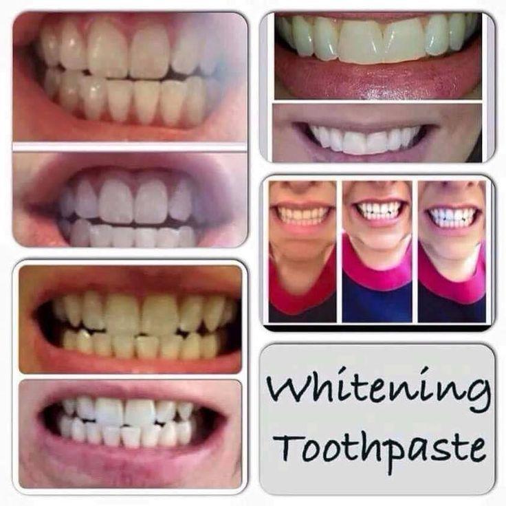 Csak egy fogkrém. Olcsóbb és hatásosabb, mint a műszeres fogfehérítés, ráadásul mindez természetes anyagokkal!  Érdekel? Írj!