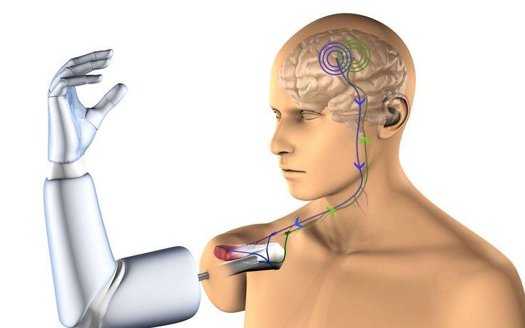 Des chercheurs de la Chalmers University of Technology ont développé la première prothèse de bras robotique complètement intégrée qui est reliée par des électrodes aux os, nerfs et muscles du...