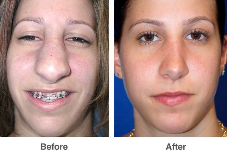 Rhinoplasty Before And After Before and after nose ...