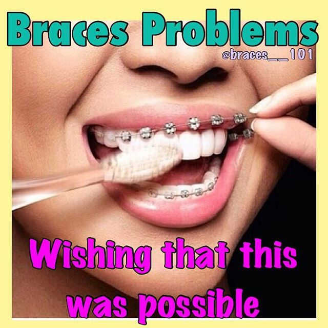 Braces Off Quotes Prepossessing 60 Best Braces Images On Pinterest  Dental Humor Braces Humor And