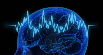 Recording Brain Activity Could Lead to Personalized Deep Brain Stimulation for Parkinson's Disease