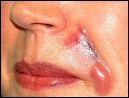 This is a result of derma filler injections that have gone horribly wrong! Make sure your practitioner is experienced, and you know what your getting into!