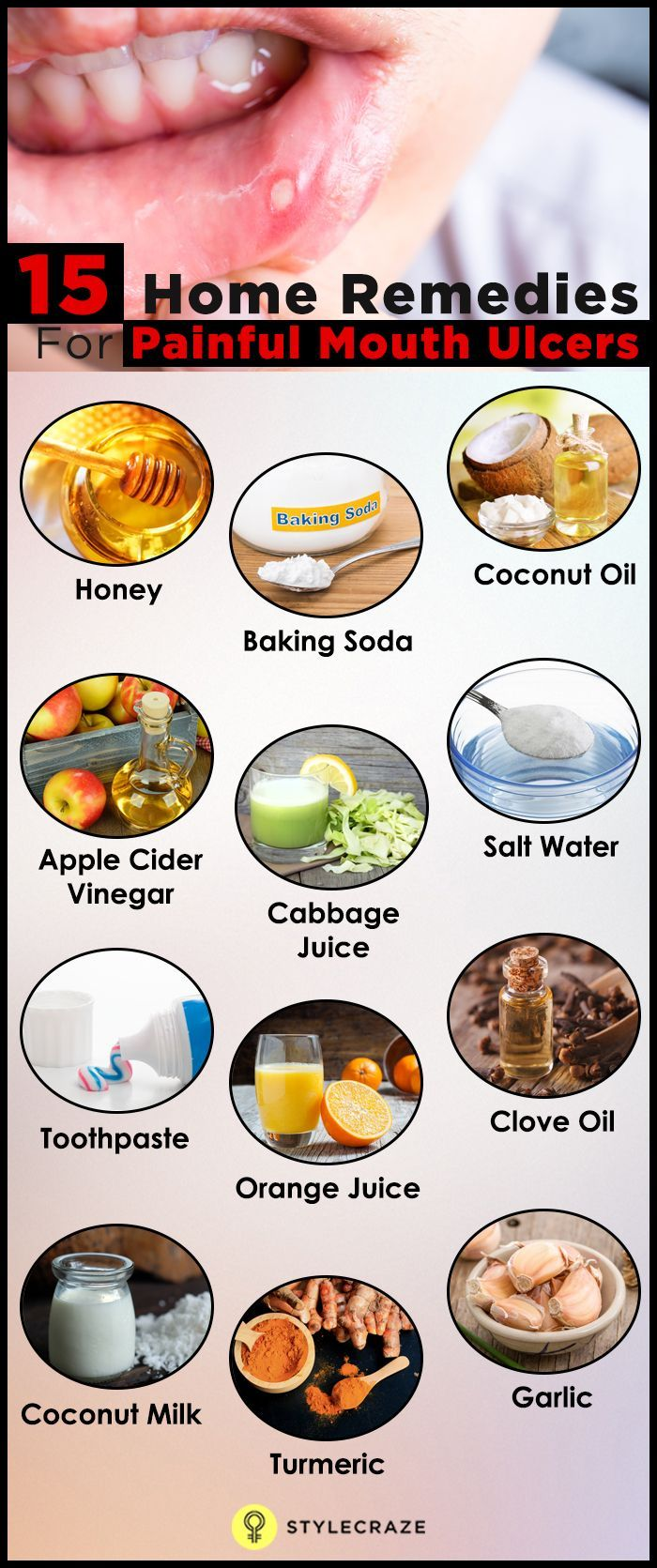 Mouth ulcers can be extremely painful and can hinder your ability to eat and speak. Check out Top 15 Home Remedies To Cure Mouth Ulcers.