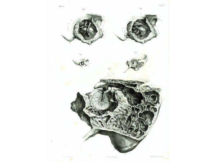 1844 Anatomie de l'oreille moyenne, membrane du tympan, Nerfs, Vaisseaux. Planche Anatomique Otorhinolaryngologie Bourgery de la boutique sofrenchvintage sur Etsy
