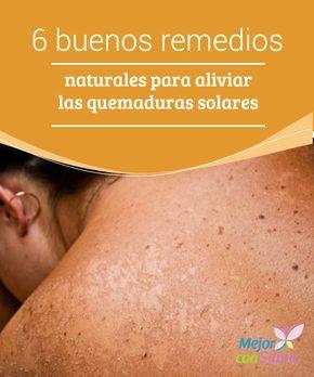 6 buenos remedios naturales para aliviar las quemaduras solares  Las quemaduras causadas por el sol son muy perjudiciales y las lesiones que dejan sobre la piel causan dolor, irritación y otros síntomas que resultan bastante molestos.
