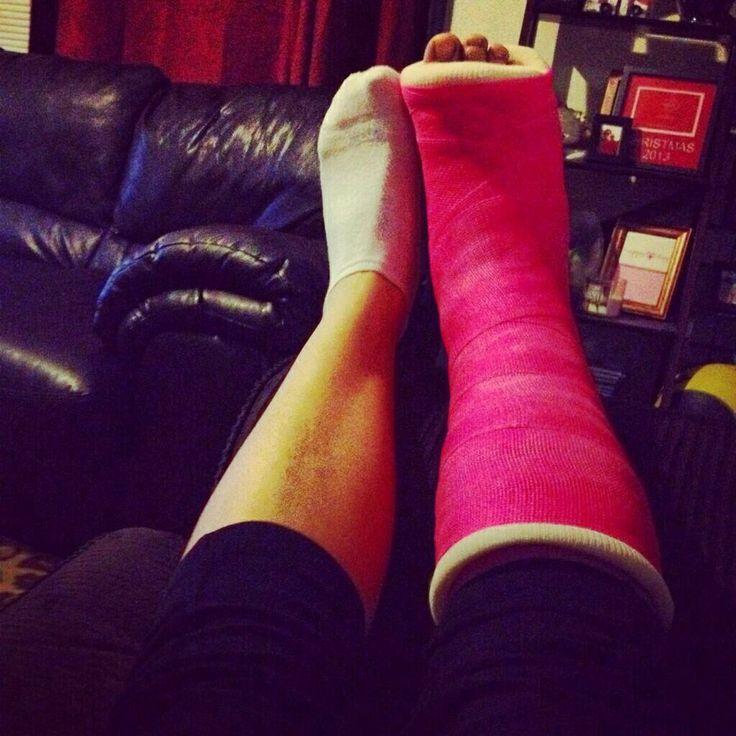 Leg cast decorated cast and crutches pinterest leg for Arm cast decoration ideas