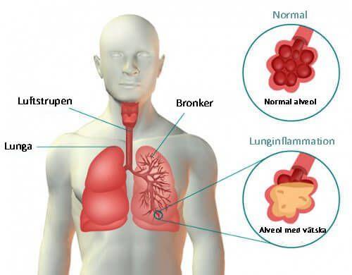 Här är de vanligaste symtomen på lunginflammation samt några enkla, naturliga huskurer som definitivt kommer bidra till att bota dig.