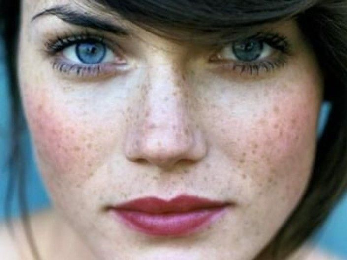berry lip, freckles