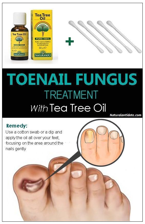 Natural treatment toenail fungus tea tree oil