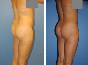 Brazillian Butt Lift with fat transfer from waist and hips and abdomen on a 29 year old attractive lady.