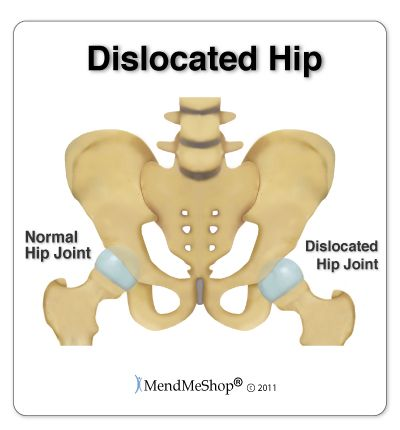 The acetabular joint, or hip joint, is the largest ball and socket joint in the body, with the femural head (top of the leg bone) sitting inside the acetabular fossa (hip socket). When the femoral head comes out of the hip socket it is referred to as a hip dislocation. Dislocations usually occur from a forceful hit to the joint, most commoly during a car accident, and will cause stretching or tearing of the connective tissue surrounding the joint.