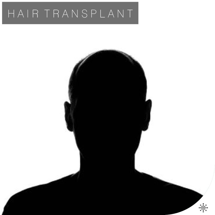 Nowadays, FUE (Follicular Unit Extraction) method is the most common hair transplantation technique thanks to its advantages. In the area of hair transplantation, the first method that comes to mind is FUE (Follicular Unit Extraction).   /// For more information  WhatsApp: 0090543 470 47 09 ///  #hairtransplant #haartransplantation#fuehairtransplant #haarverlängerung #hairtransplantation #greffedecheveux #trasplantedepelo #haartransplantatie #trasplantecapilar #trapiantodicapelli