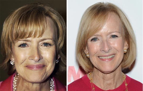 Judy Woodruff Plastic Surgery Face Lift Before And After Photos