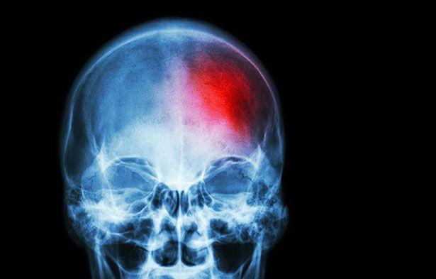 #Hirnschrittmacher gegen Schlaganfall-Folgen? - scinexx   Das Wissensmagazin: scinexx   Das Wissensmagazin Hirnschrittmacher gegen…