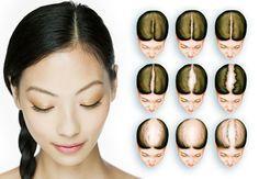 Obat rambut rontok alami