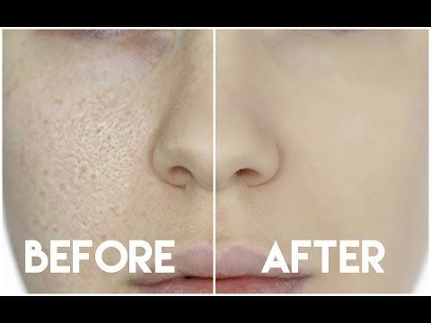 HOW TO HIDE ENLARGED PORES & MAKE YOUR PORES DISAPPEAR! - YouTube