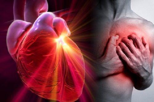 Infarctus, arrêt cardiaque, accident vasculaire cérébral, ictus, apoplexie…Vous avez tous entendu parler de ces pathologies, mais il peut être assez difficile des les distinguer, et de savoir clairement ce qui les différencie. Dans cet article, nous allons vous expliquer en détails, en quoi consistent ces problèmes de santé et quels sont facteurs qui augmentent le risque de souffrir de l'une de ces maladies cardiovasculaires.