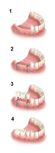 Small bridge    THREE CROWN BRIDGE ON DENTAL IMPLANTS    1. Diagnostics  In this case there are three teeth missing in the back of the upper jaw.    2. Implanting procedure  After examination, two dental implants are inserted. Time of osseointegration can be from  3 – 6 months.    3. Mounting dental bridge  Once the dental implants are osseointegrated, abutments are inserted and bite is taken for the future dental bridge.