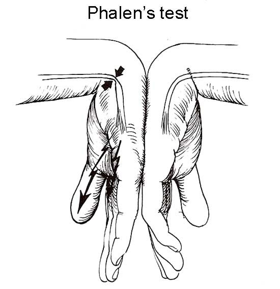 Phalen's Sign: Phalen's test is done by pushing the back of your hands together for one minute. This compresses the carpal tunnel and is also positive when it causes the same symptoms you have been experiencing with your carpal tunnel syndrome.