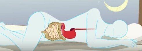 Une astuce pour traiter les hémorroïdes. Comment soigner naturellement les hémorroïdes ? Le vinaigre de cidre pour soigner les hémorroïdes.