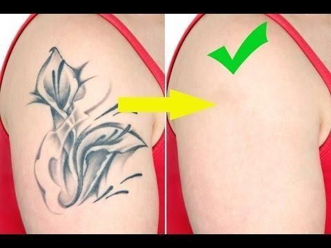 Tattoo Removal Cost Naturally Without Lazer, The Truth And Results #TattooRemoval #tattooremovalnatural
