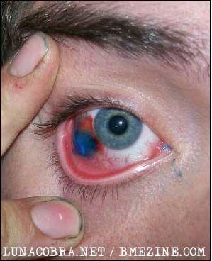 Teknik Cara Pembuatan Tato Di Bola Mata