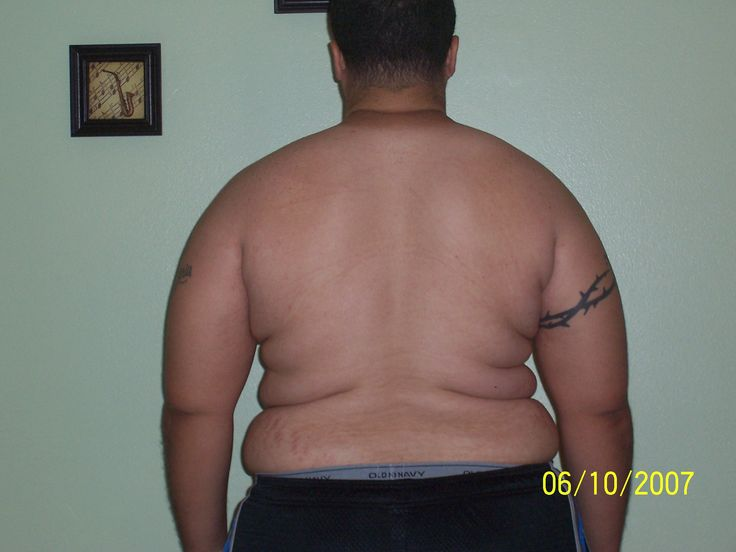 Fat Man Back Dimples ...stop those unsightly back bulges ...