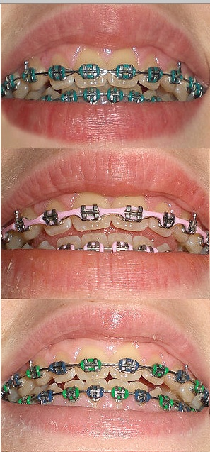 45 best braces images on pinterest braces colors orthodontics and this patient switched her bracess color three times which do you like solutioingenieria Images