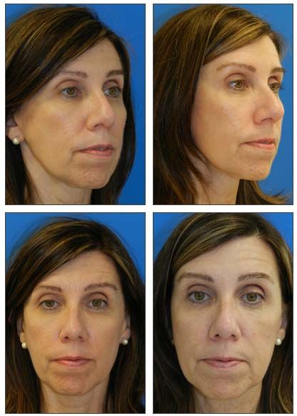 Miami woman had a endoscopic brow lift and Lower blepharoplasty picture taken 1 month after surgery.