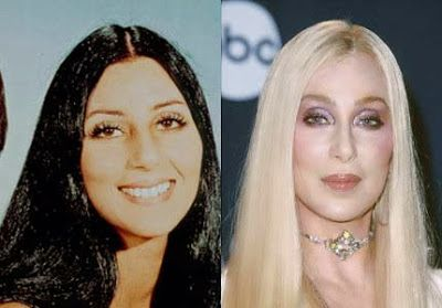 Cher Plastic Surgery Before After - http://www.celeb-surgery.com/cher-plastic-surgery-before-after/?Pinterest