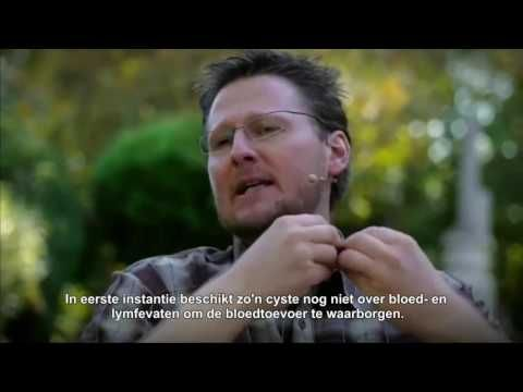 Biologika Nederland - baarmoederhalskanker, myomen, eierstokkanker, endometriose - YouTube