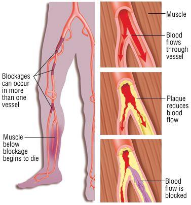 Peripheral Vascular Examination | Peripheral Vasculara (img thanks to drug.com)
