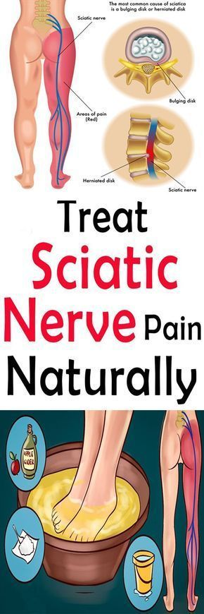 Sciatic nerve pain is extremely uncomfortable, hard to get rid of, and prevents you from living your life. Do these at-home treatments everyday to get rid of sciatic pain instantly and permanently.