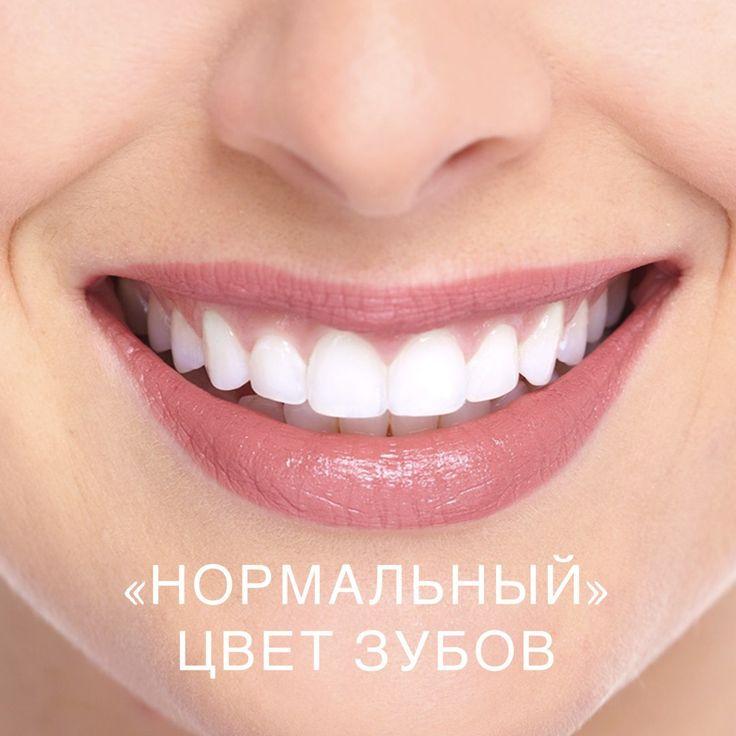 """Многие думают, что """"нормальный"""" цвет зубов-белоснежный, но это не так. Люди рождаются с разными зубами, и далеко не всегда они жемчужно-белые. Для определения цвета зубов стоматологи разработали специальную шкалу, которую назвали шкалой Вита. В соответствии с ней все возможные оттенки зубов разбиты на 4 группы – A (красновато-коричневые оттенки), B (красновато-желтые оттенки) , C (серые оттенки), D (красновато-серые оттенки). Внутри каждой группы выделяется несколько степеней насыщенности –…"""