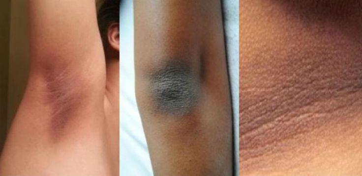 Ecco la guida completa per rimuovere la pelle scura dal collo, gomiti, ginocchia e ascelle