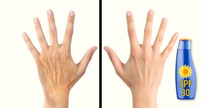 5 Υπέροχοι Τρόποι για να Κάνετε τα Χέρια σας να Φαίνονται ως και 10 Χρόνια Νεότερα! #Υγεία&Ομορφιά