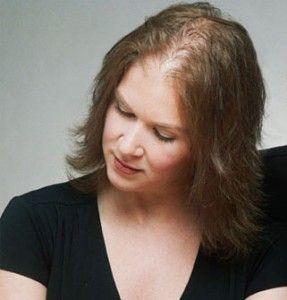 Recupere seus cabelos com o método revolucionário, natural e inédito... Dona Laurinda descobriu a cura da calvície...