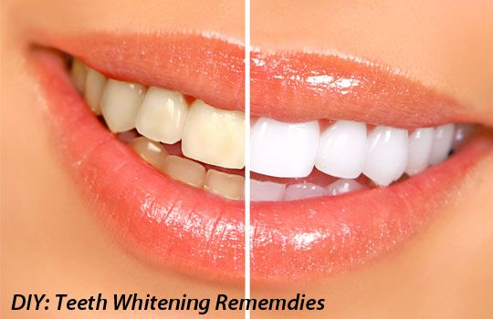 5 diy teeth whitening remedies that actually work