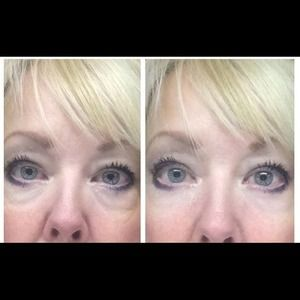 Two samples Two samples instantly ageless Jeunesse instantly ageless - two vial samples.
