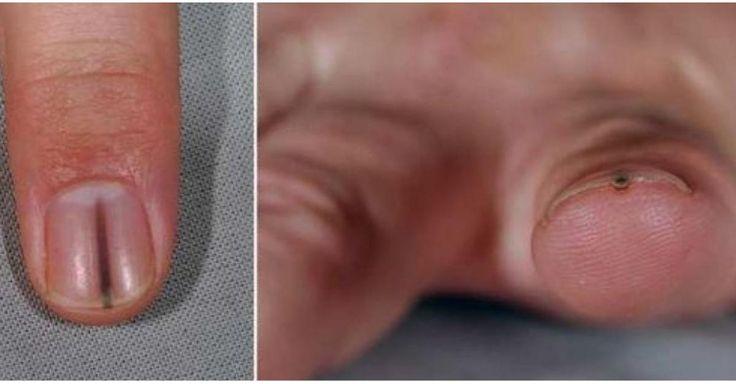Não Perca!l Mancha escura na unha? Cuidado! Pode ser sinal de câncer de pele! - # #câncer #manchanaunha #sinaisdecâncer