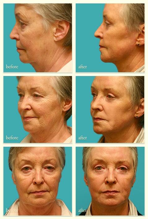 Female - 74yrs - Good results of Face Lift, Upper and Lower Lids, Profractional Laser Peel. #GoodAndBadSurgeryResults #PSHubcosmeticsurgery #PSHubplasticsurgery #PSHubsurgicalprocedures #PSHubCosmeticReconstructiveSurgery #SurgicalProceduresAustralia #plasticsurgeryaustralia #plasticsurgeryhub www.plasticsurgeryhub.com.au