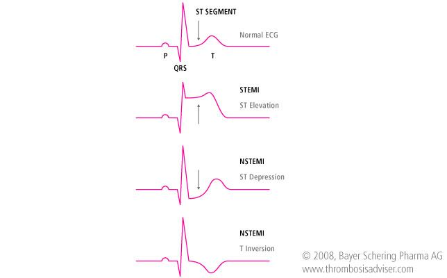 Chest Pains in an ICU Patient: What the Nurse Should Know