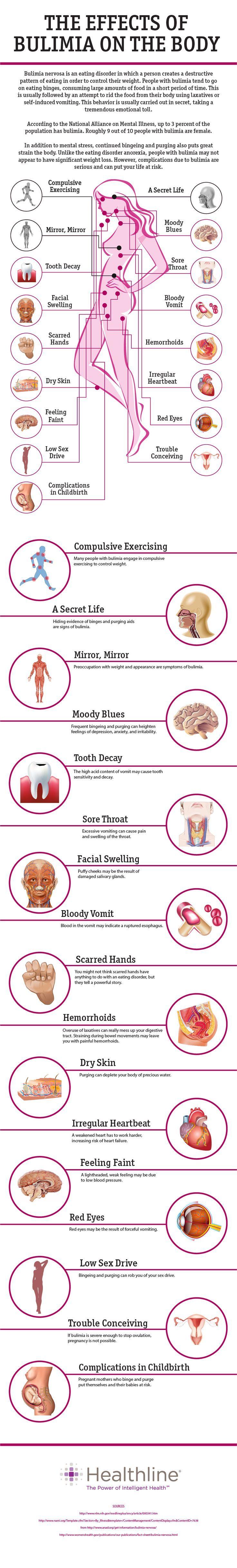 17 Effects of Bulimia on the Body= http://www.healthline.com/health/bulimia/effects- RAZONES POR LOS CUAL NO HACERLO