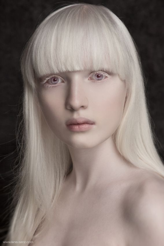 true-albino-beauties