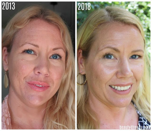 How I Got Rid Of My Uneven Skin Tone Uneven Skin Uneven Skin Tone Face Tone